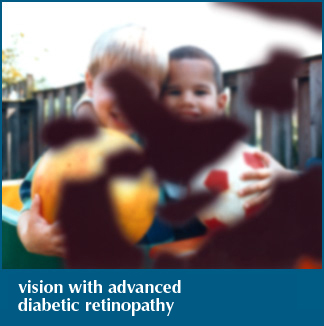 Photos courtesy of the National Eye Institute Diabetic Retinopathy Vision